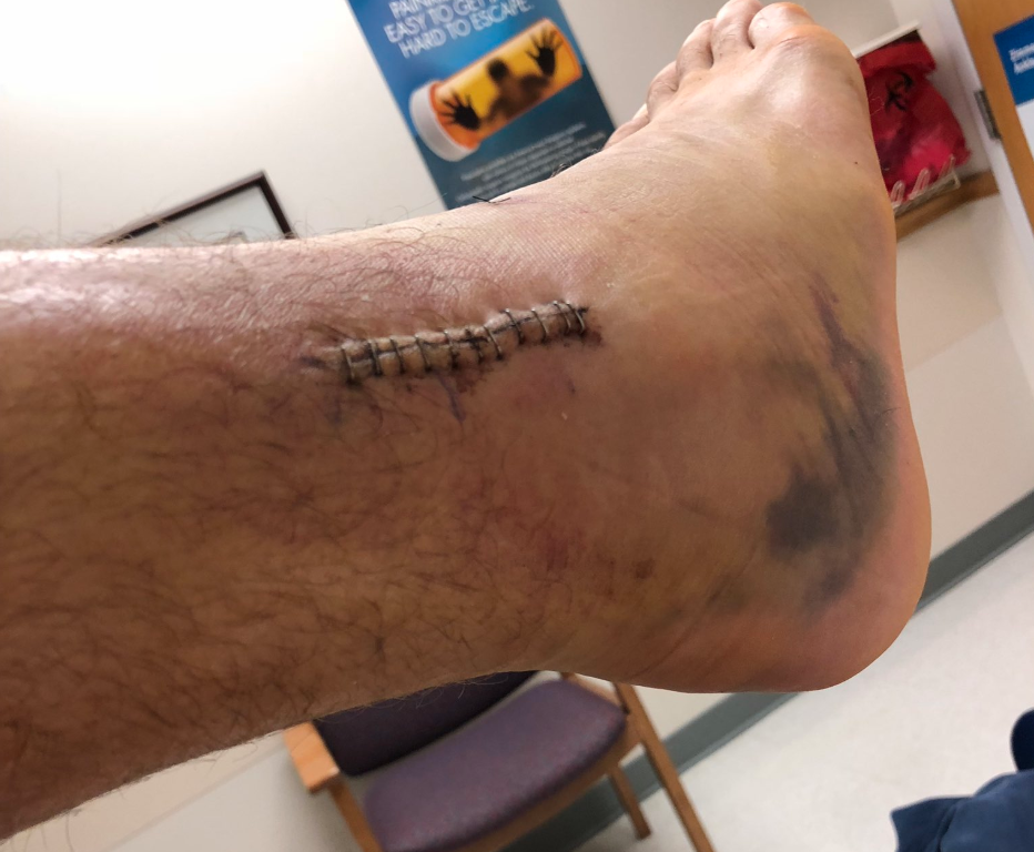 Tyler Eifert shows off photo of gruesome ankle injury