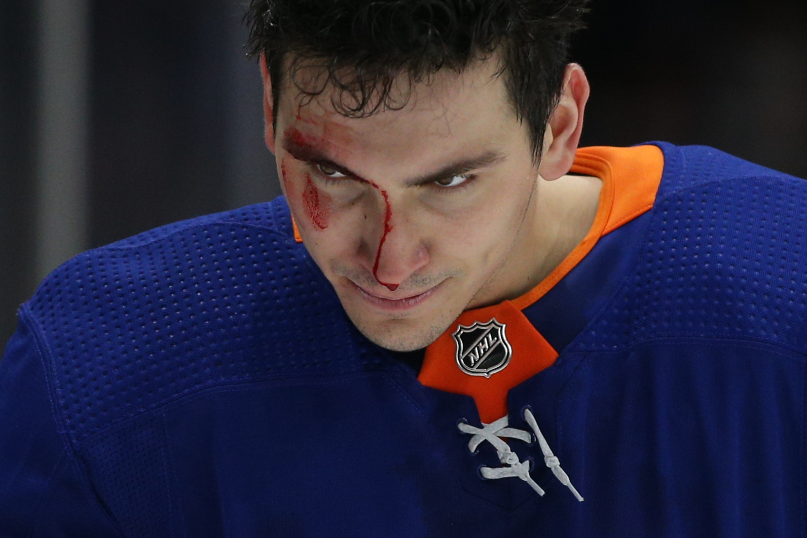 Feb 25, 2020; Uniondale, New York, USA; New York Islanders left wing Michael Dal Colle (28) leaves the ice with a bloody face after being checked by New York Rangers defenseman Jacob Trouba (not pictured) during the third period at Nassau Veterans Memorial Coliseum. Mandatory Credit: Brad Penner-USA TODAY Sports